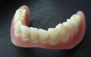 Zahnarztpraxis Dentalfitness Unterkiefertotalprothese