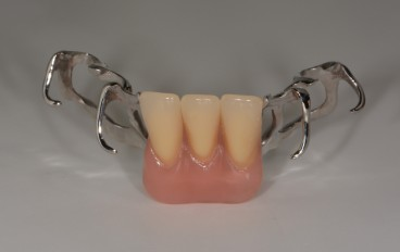 Zahnarztpraxis Dentalfitness Unterkiefermodellgussteilprothese