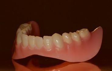 Dentalfitness Unterkiefertotalprothese