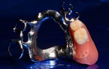 Zahnarztpraxis Dentalfitness Modellgussteilprothese