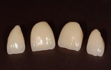 Zahnarztpraxis Dentalfitness Keramikveneers Frontzähne