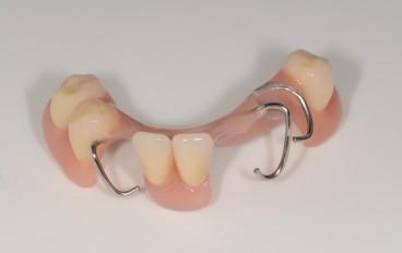 Zahnarztpraxis Dentalfitness Drahtklammerteilprothese
