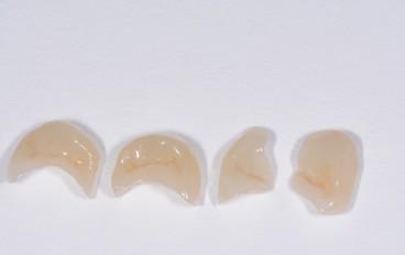Zahnarztpraxis Dentalfitness Keramikteilfüllungen