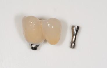 Zahnarztpraxis Dentalfitness Implantatfliegerbrücke verschraubt