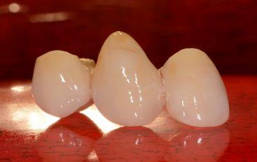 Zahnarztpraxis Dentalfitness Vollkeramikbrücke